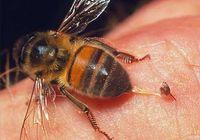 Пчелиный яд способен снять воспаление сумки плечевого сустава