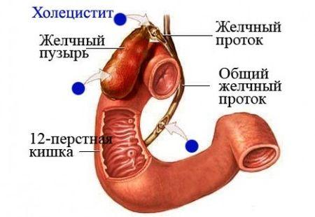 Холецистит